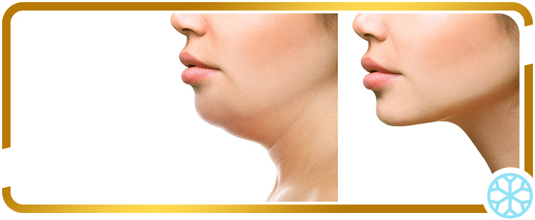 Radiofrequency for Facial Skin Tightening in Chicago, IL